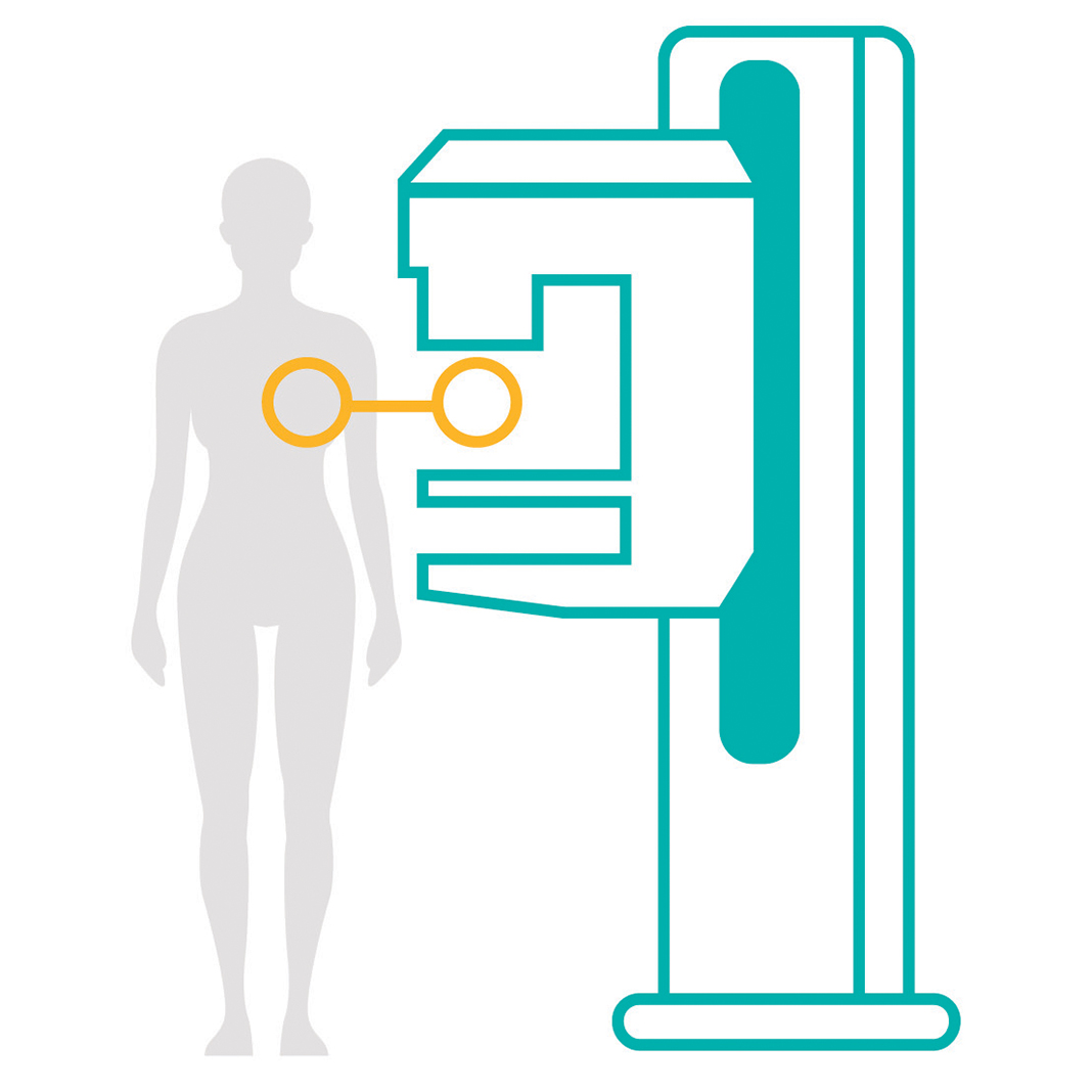 Illustration of mammography machine. North Memorial Health Breast Center now offers 3D mammography