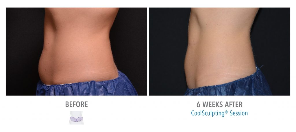 Before and after photos of an abdomen after CoolSculpting at Associated Skin Care Specialists