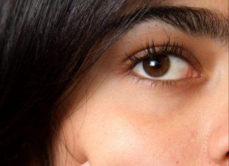 Maskne, acne
