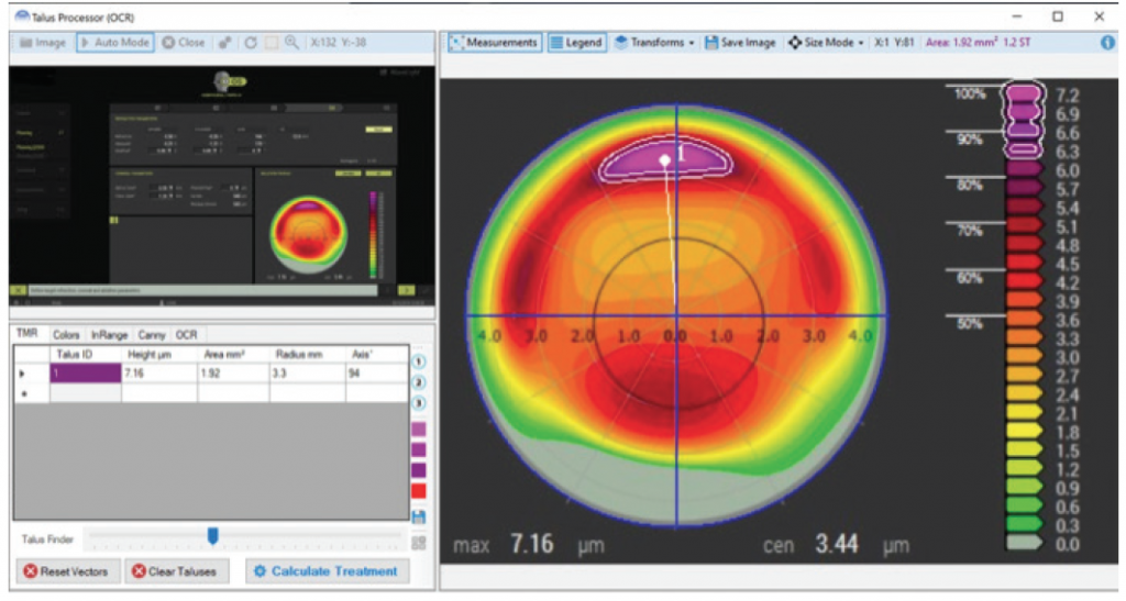 Phorcides Analytic Engine software for laser eye surgery